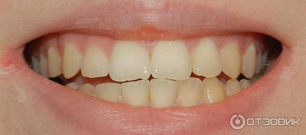 Отбеливание зубов в домашних условиях фото