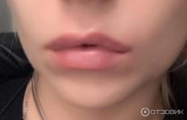 Surgiderm для увеличения губ отзывы