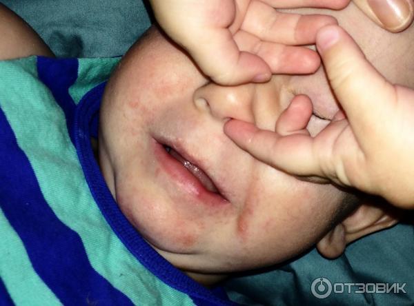 Температура при атопическом дерматите