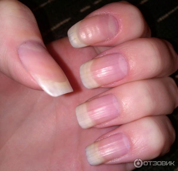 Пожелтел гель лак на ногтях