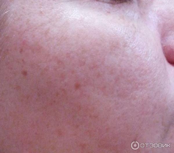 Гель-крем Mirra экспресс-увлажнение с экстрактом листьев и почек березы фото