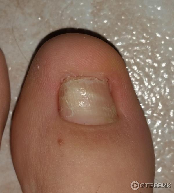 Влияние грибка ногтей на весь организм