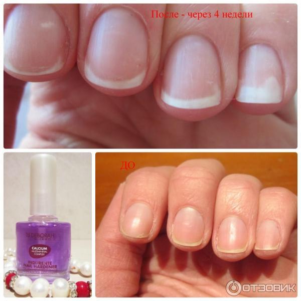 Маникюр для ломких ногтей