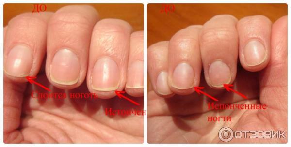 Перестали слоиться ногти