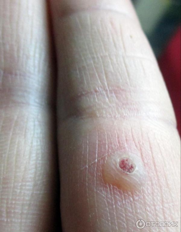 Опухла рука после бородавки