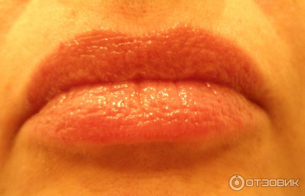 Опухли малые половые губы и чешутся
