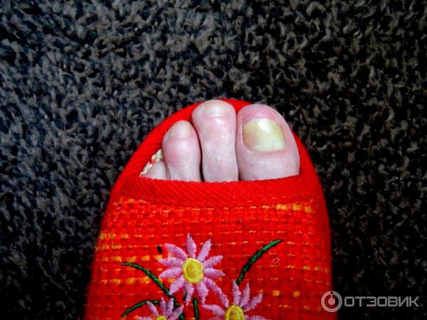 Микостоп крем паста для ногтей