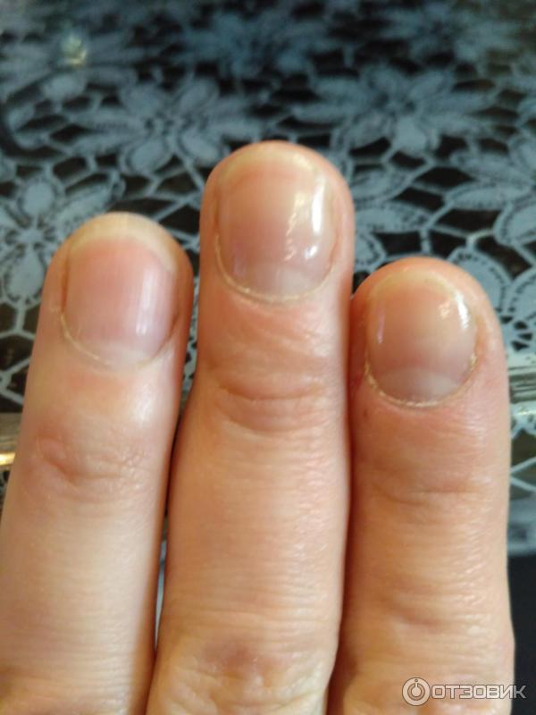Грубеет кожа вокруг ногтей