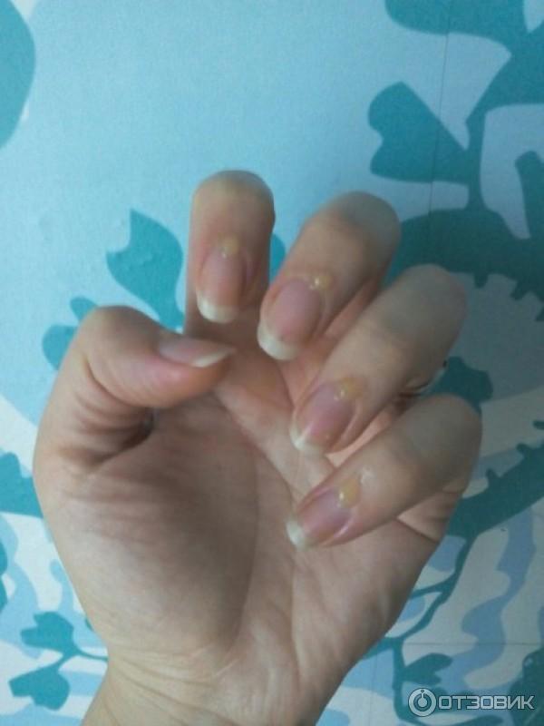 Как увлажнить ногти и кутикулы на руках