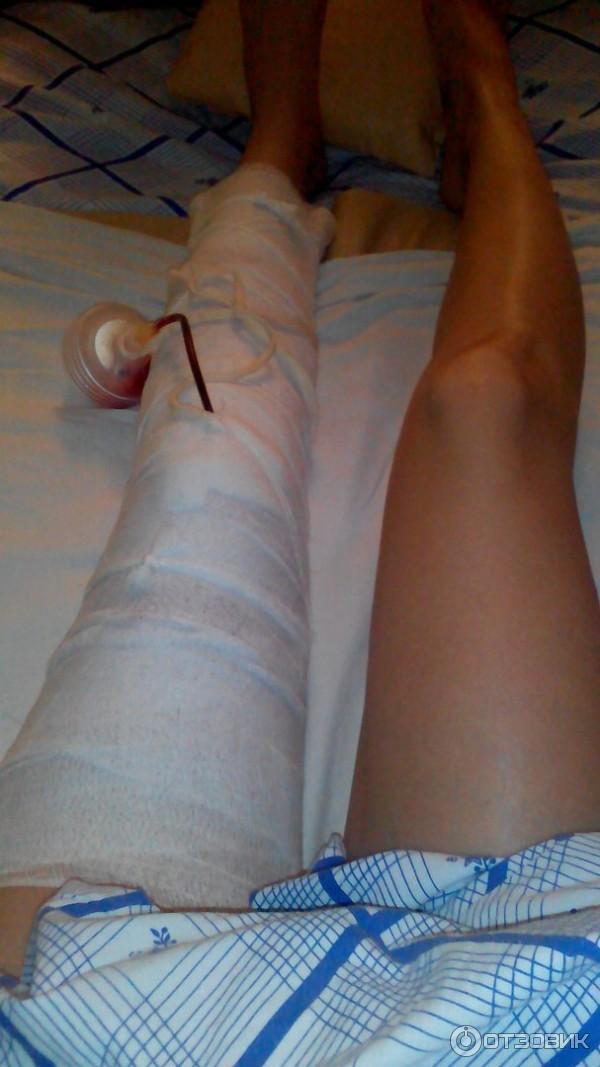 Температура после артроскопии коленного сустава боль в суставах в 23 года