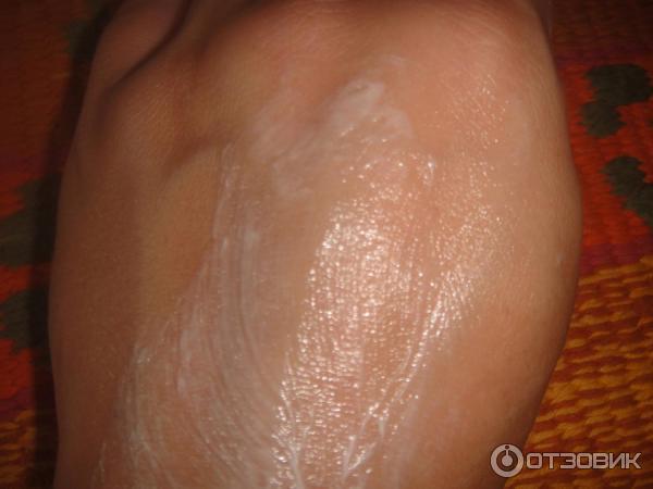Чём намазать кожу после солнечного ожога в  574