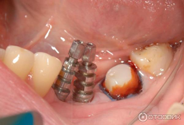 Как сделать имплантанты всех зубов 433
