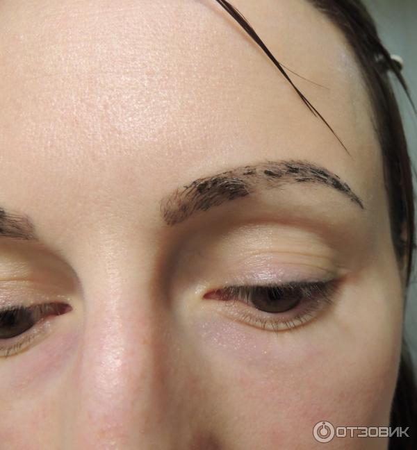 36Чтобы не осталось шрамов на брови