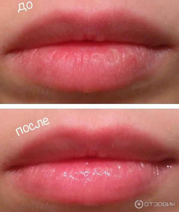 Блеск для губ диор для увеличения губ
