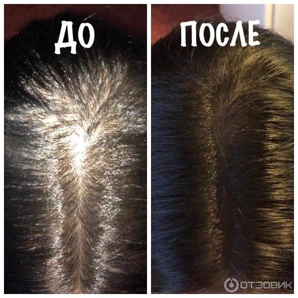 Лореаль для корней волос
