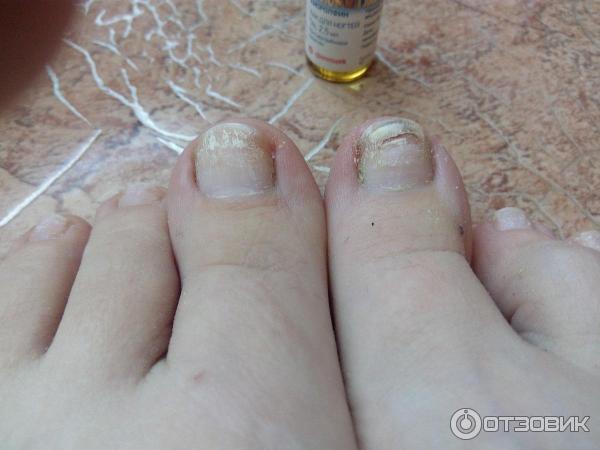 Лечение грибка ногтя на руке у беременных