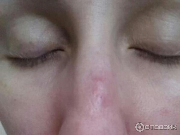 Простуда на глазах у ребенка фото