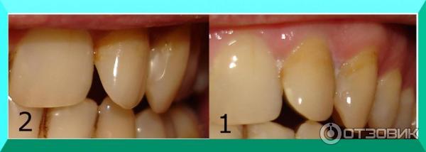 Электрическая зубная щетка philips hx3110 33