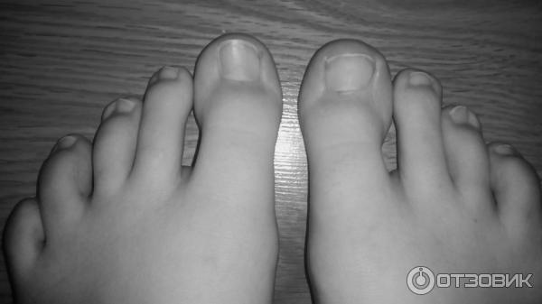 Фото ногтя после операции лазером