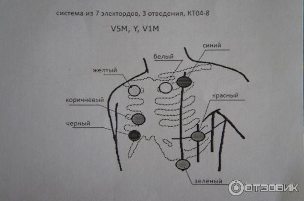 Отзыв о Суточный (Холтеровский) мониторинг ЭКГ | Суточное ...